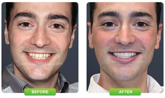 Perfect smile with Mumbai Dentist