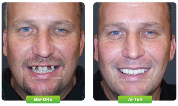 Change your smile with Dentzz