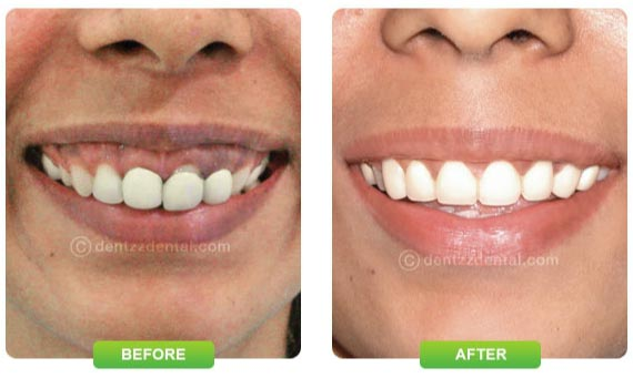Dentzz smile gallery before and after