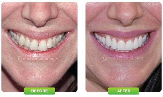 Dentzz smile improvement