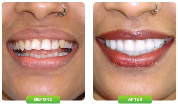 Dentzz Smile makeover