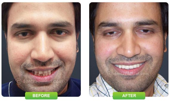 Improve smile with Dentzz