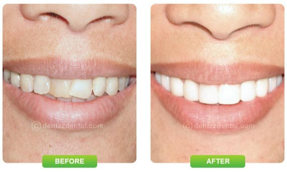 Fix smile with Dentzz