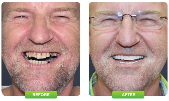 Make your smile proper with dentist Mumbai
