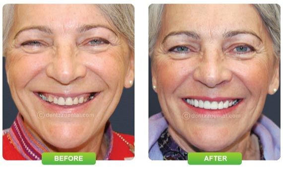 Dentist Mumbai Smile Improvement