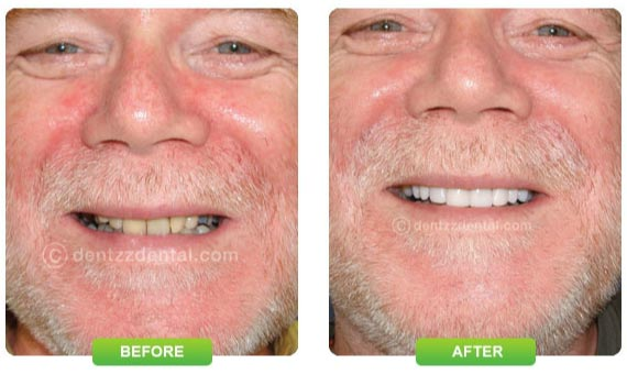 Tooth Implants before and after
