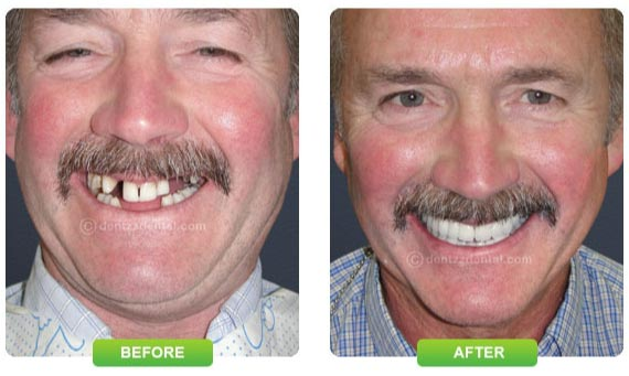 Tooth restructure before and after