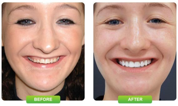 Dentist Mumbai before and after