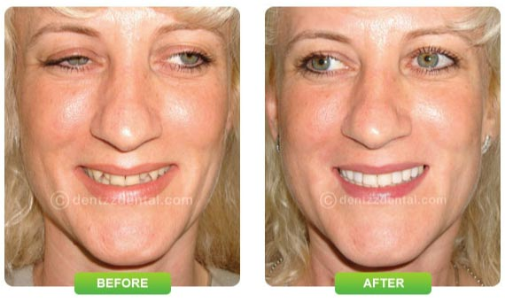 smile makeover with dentist India